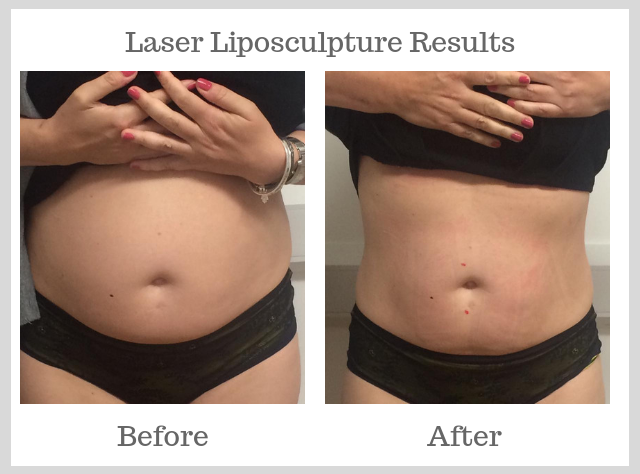 Beehive Healthcare | Skin Rejuvination, Facial Peels and Acupuncture | Liposuction Before and After