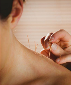 Beehive Healthcare Chester | Health and Wellbeing Centre | Acupuncture